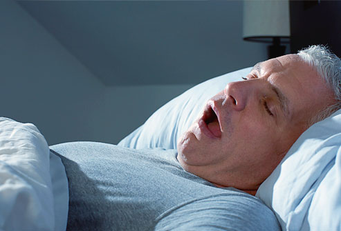 sleep apnea can be fixed with exercise