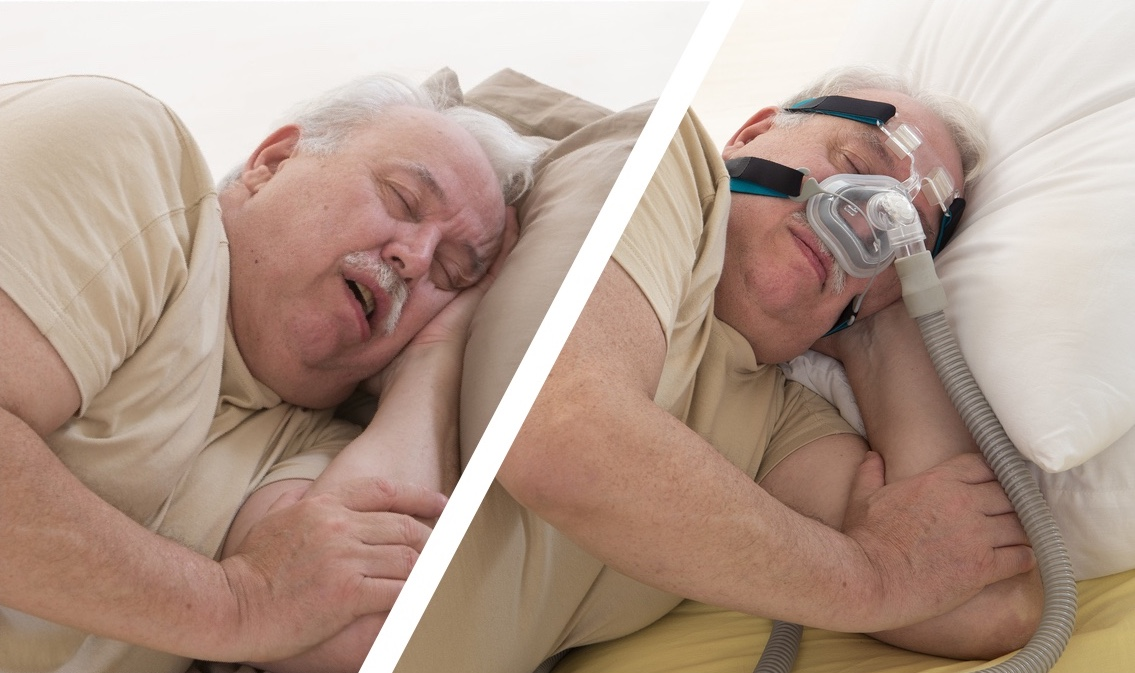 should you try a sleep apnea machine