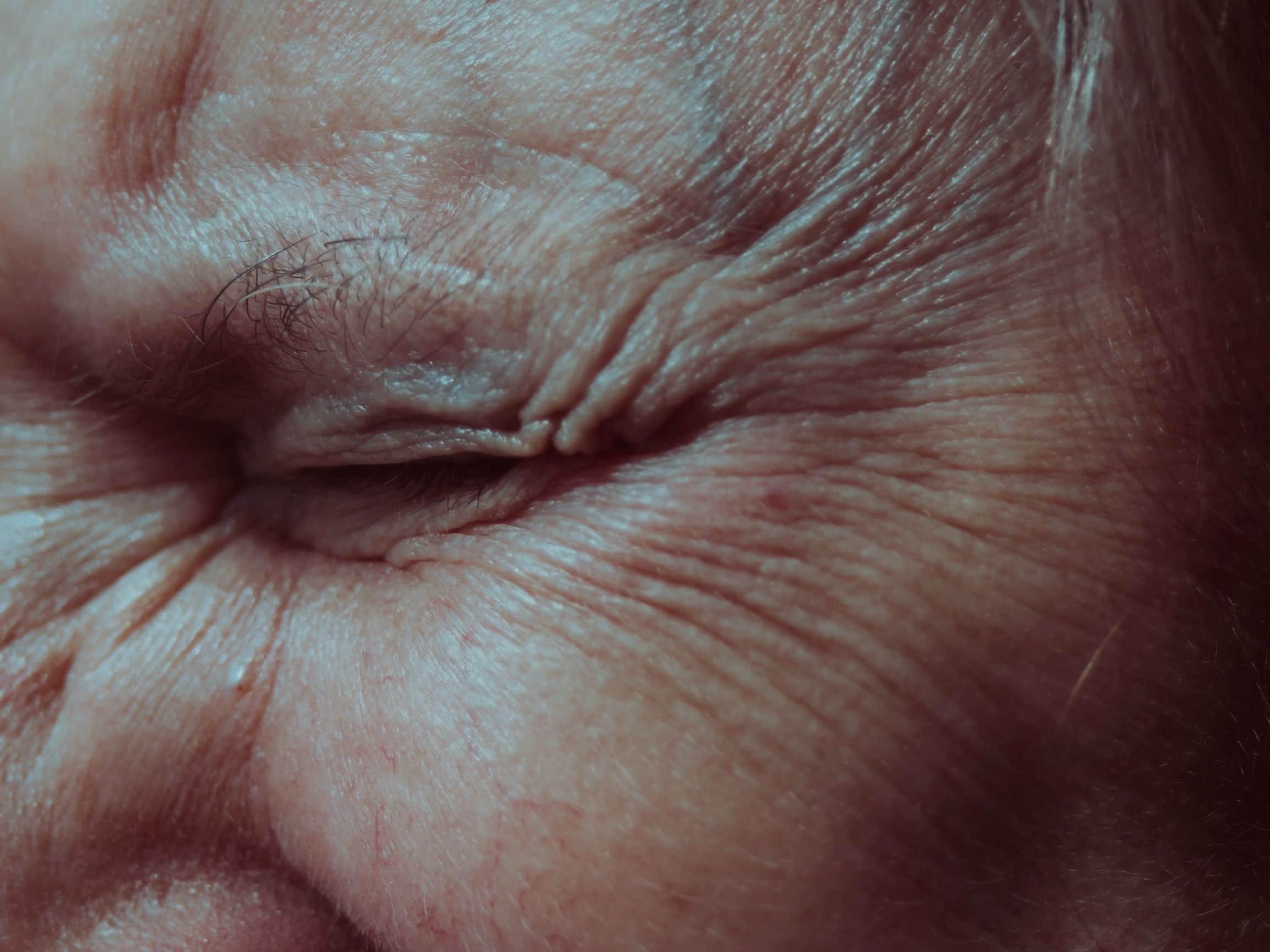 wrinkles and skin aging caused by lack of sleep