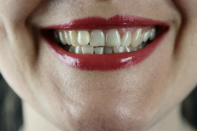 bruxism clenching your jaw while you sleep